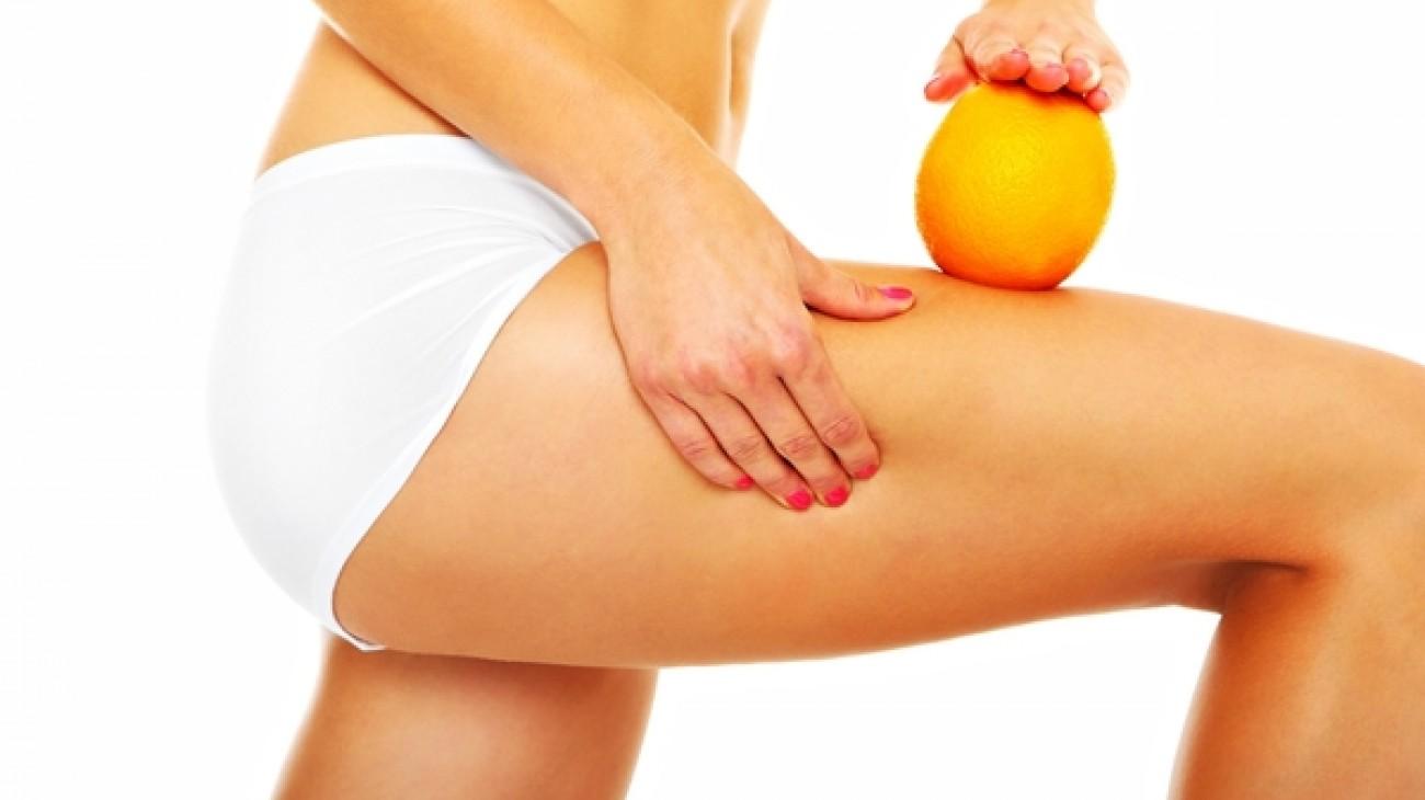 Skuteczne zabiegi na cellulit – które z nich są najlepsze?